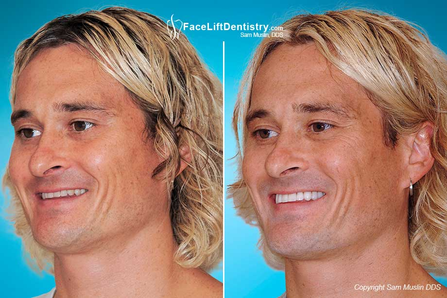 The Before and After photo shows the Overbite Corrected with Face Lift Dentistry<sup>&reg;</sup>