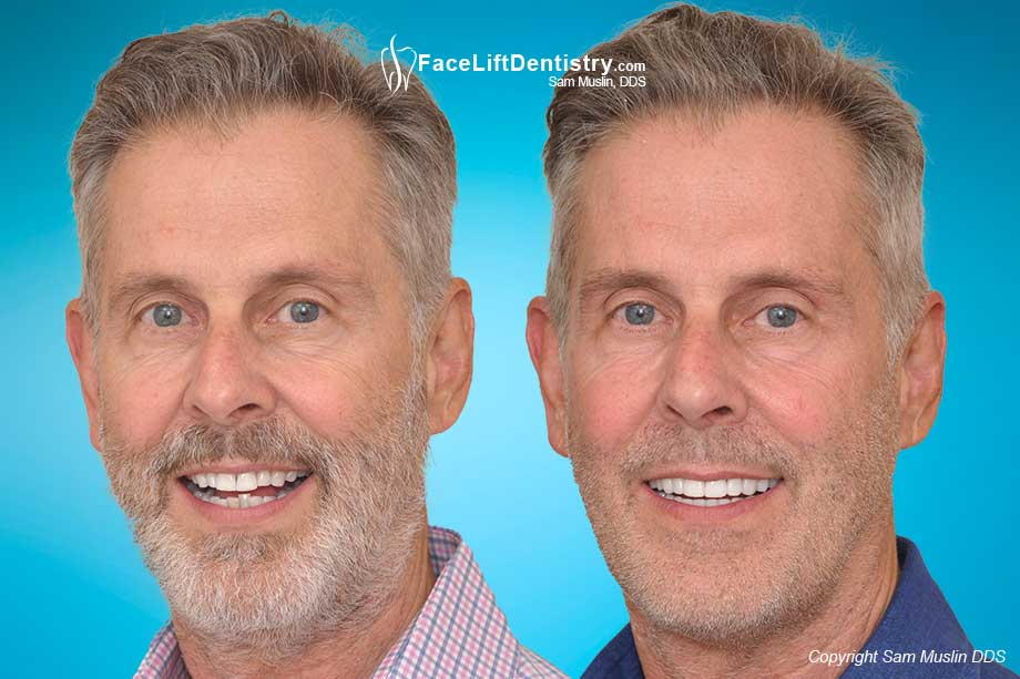 Moving his lower jaw to the ideal position fixed his overbite without braces or surgery - Before and After Photo