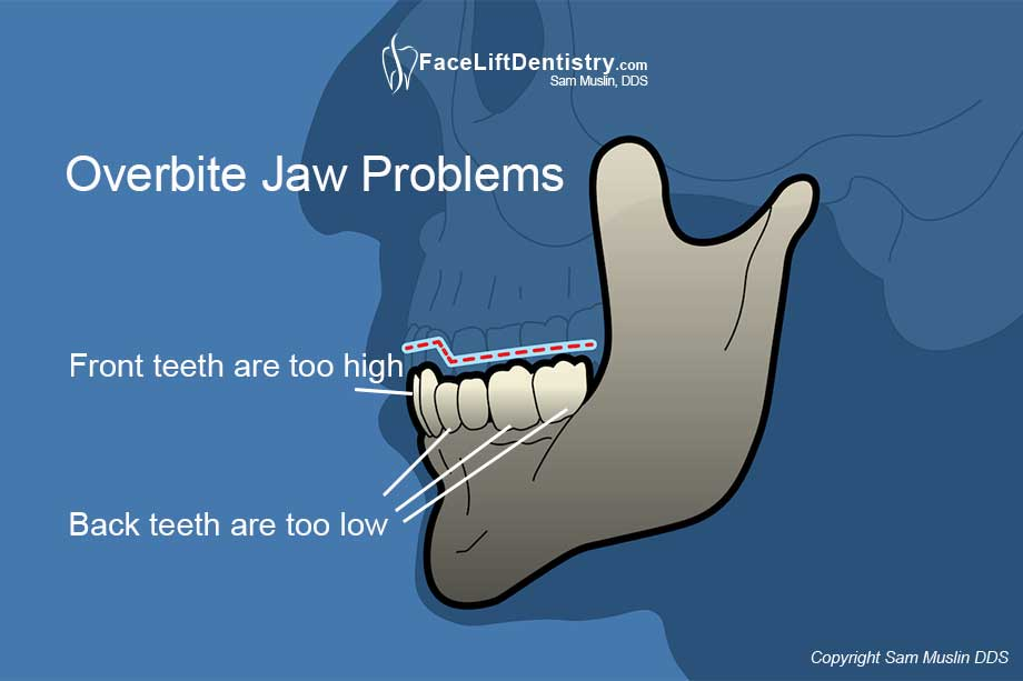Illustration showing an overbite and resulting jaw tension