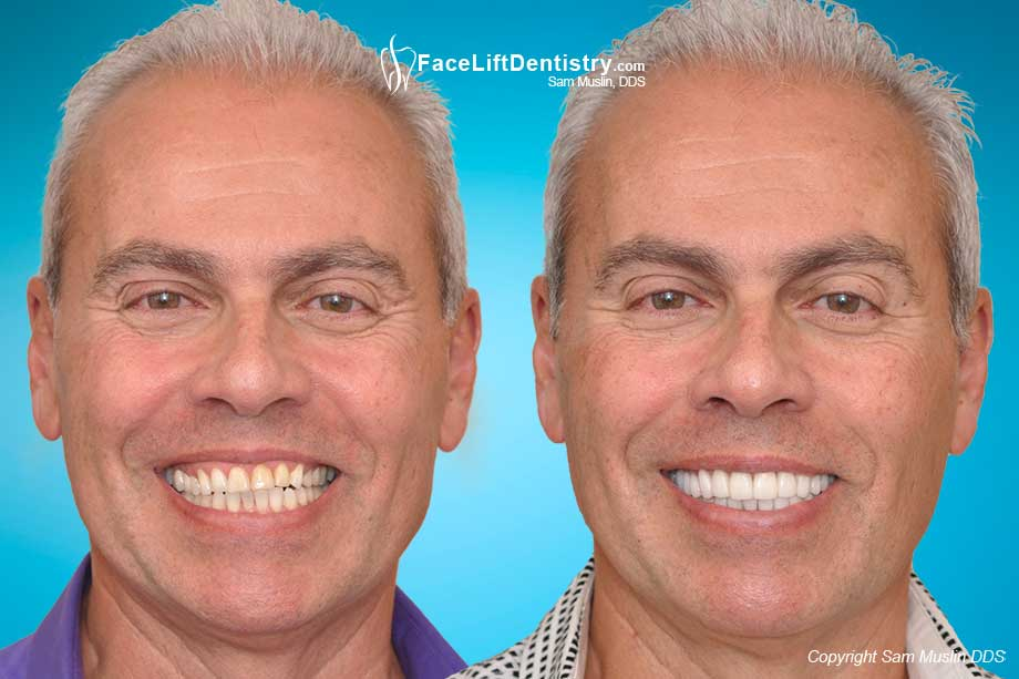 Teeth Wear due to Bruxism, a bad bite and age - Before and After Treatment