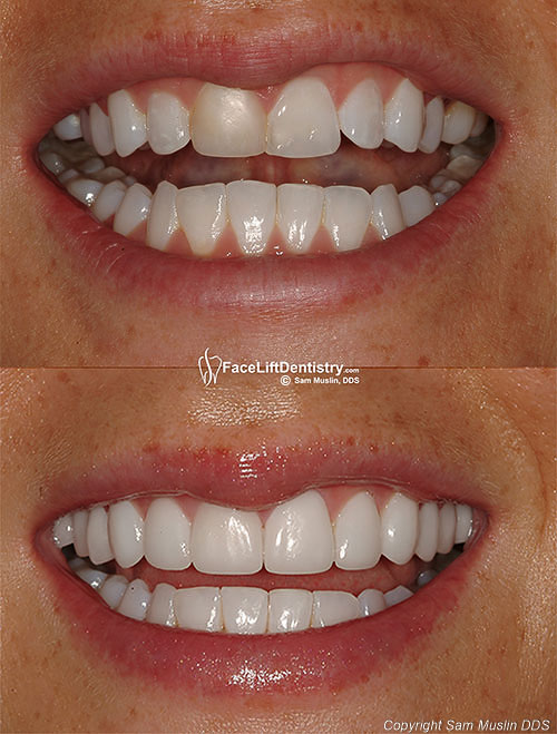 Closeup photo showing evenly matched porcelain veneers and natural teeth