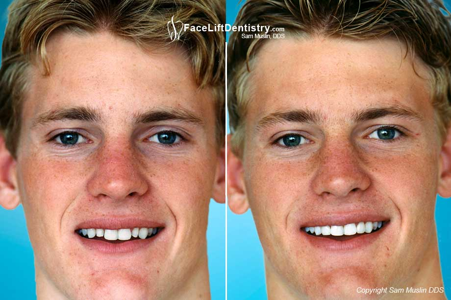 The before photo shows the patient with two small teeth which are way smaller than his other teeth. This was corrected with prepless veneers, visible in the after photo.