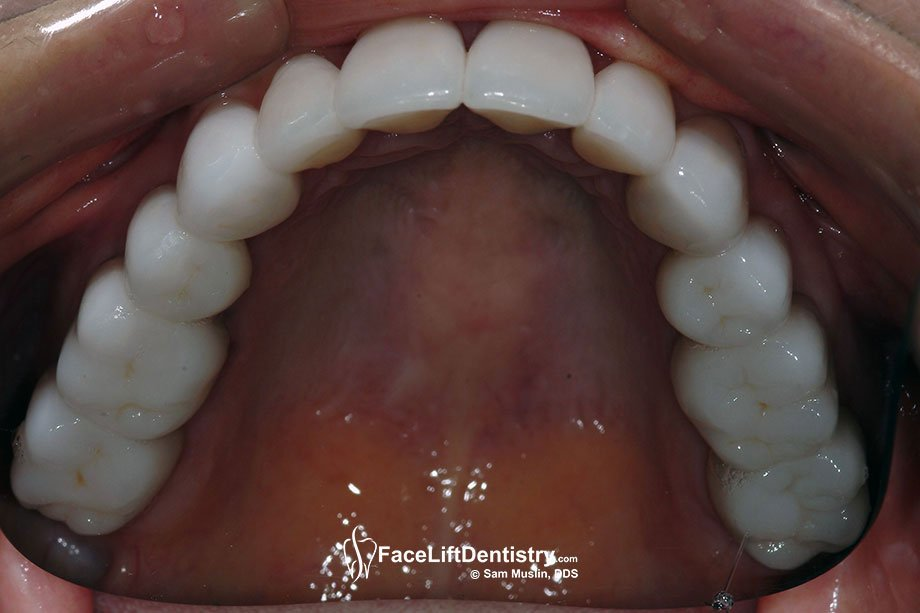 Porcelain crowns on her upper teeth after a going through a painful