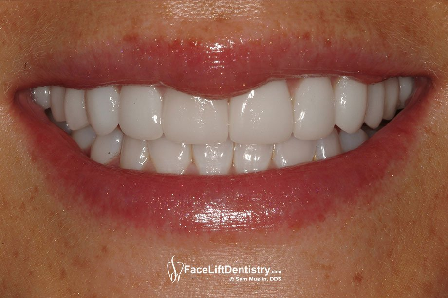 The narrow smile is now corrected and the non-invasive ultra thin veneers are perfectly matched in color and texture to her natural lower teeth.