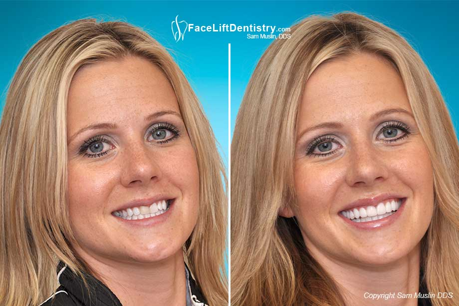 Teeth Veneers - Before and After