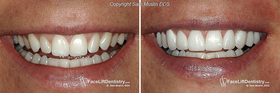 closeup showing the before and after smile of a patient treated with prepless teeth veneers.
