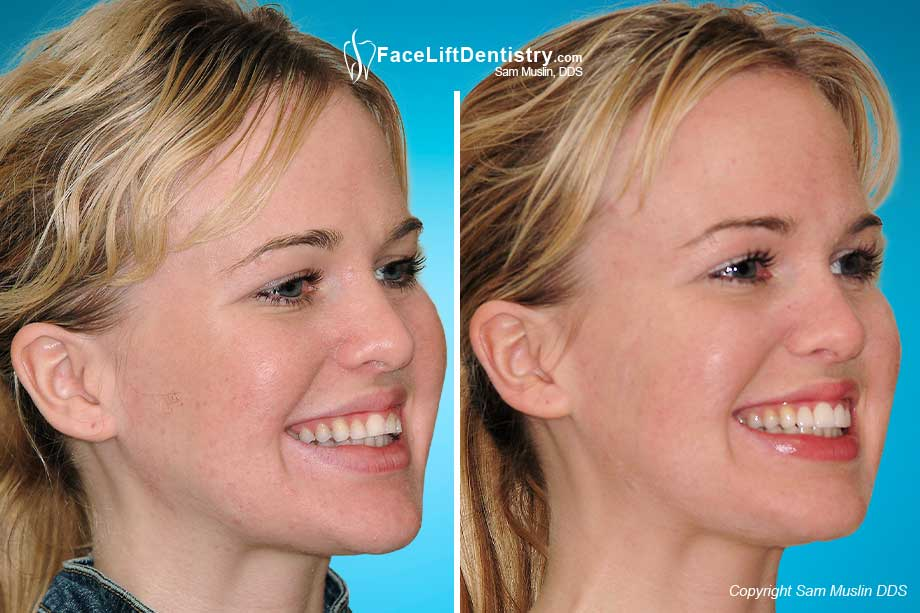 The outcome in this before-after picture shows prepless porcelain veneers.