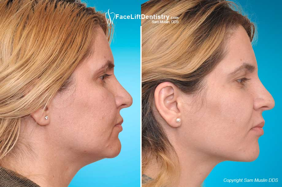 Before and After Correcting a Small Chin and an Overbite