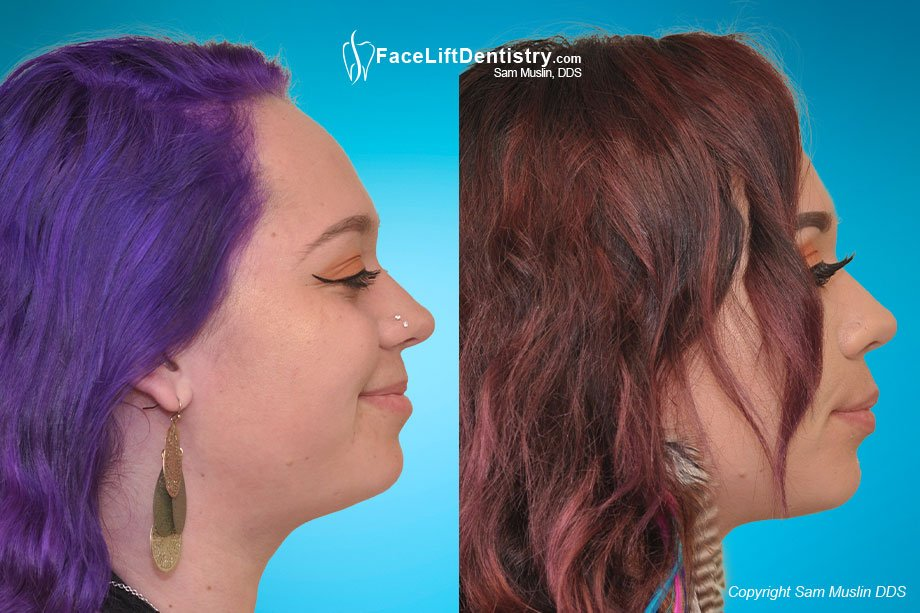 Facial profile enhancement - before and after non-surgical treatment