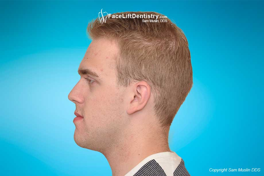Facial profile after protrusive chin corrected.