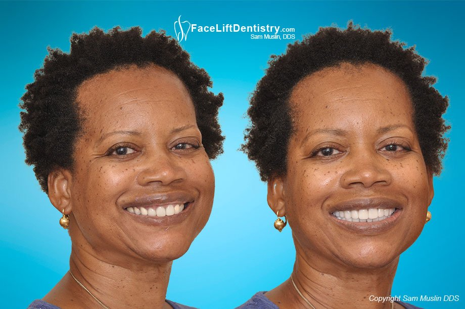 A patient with an overbite and receding chin in the before photo, compared with a true Dental Facelift in the after photo.