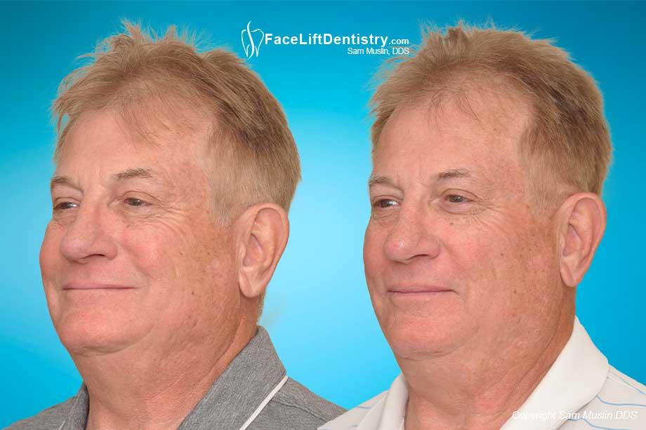 Repairing aging teeth with no-drilling VENLAY Restorations