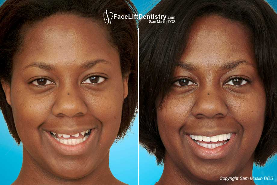 terrible tooth case form Dental crown pain – important facts you  therefore its form  a tooth crown is usually put on a tooth after a tooth root canal is performed on it, in case.