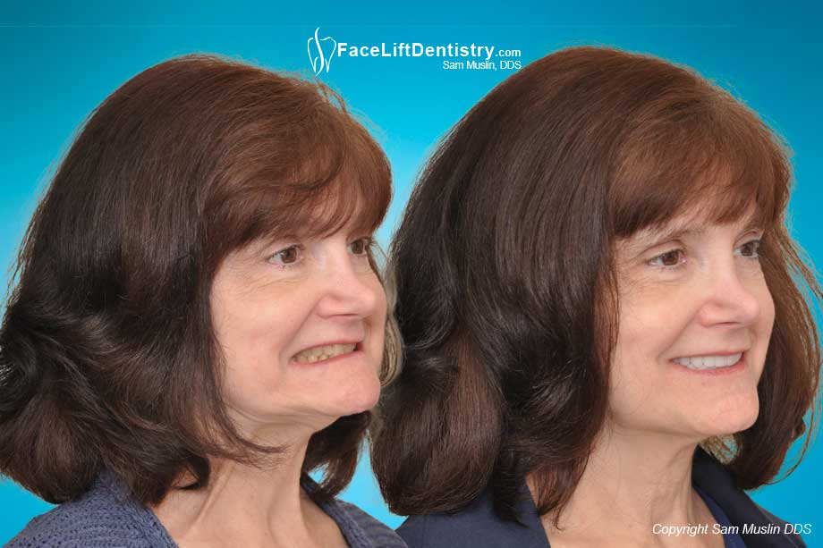Treating facial collapse with anti-aging Facelift Dentistry®