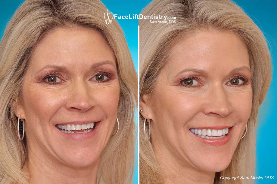 Reversing aging with the Face Lift Dentistry Method - Before and After