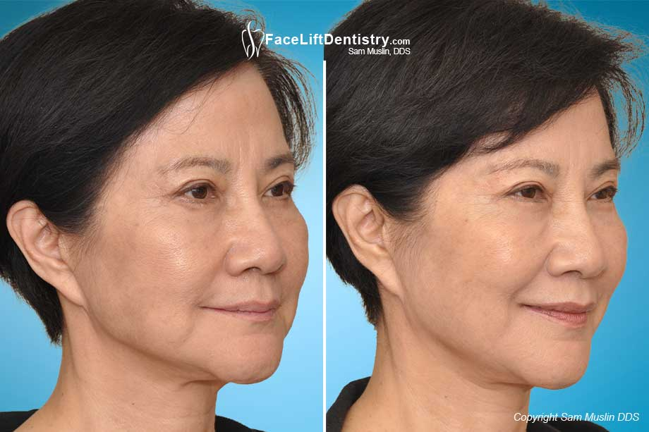 Fixing a collapsed jaw results in smoother facial skin, fuller lips and improved facial shape, made possible with JawTrac®