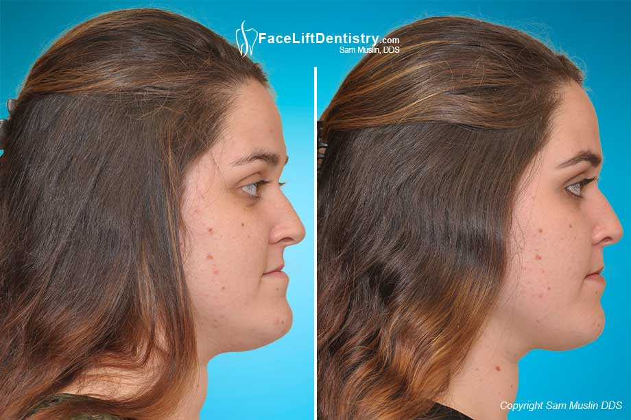 Before and After Skeletal Underbite COrrection showing a repositioned jaw and vastly improved profile.
