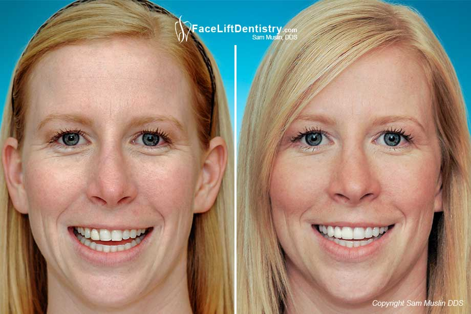Slanting Teeth: Before and After photo showing the outcome of this treatment for slanted teeth