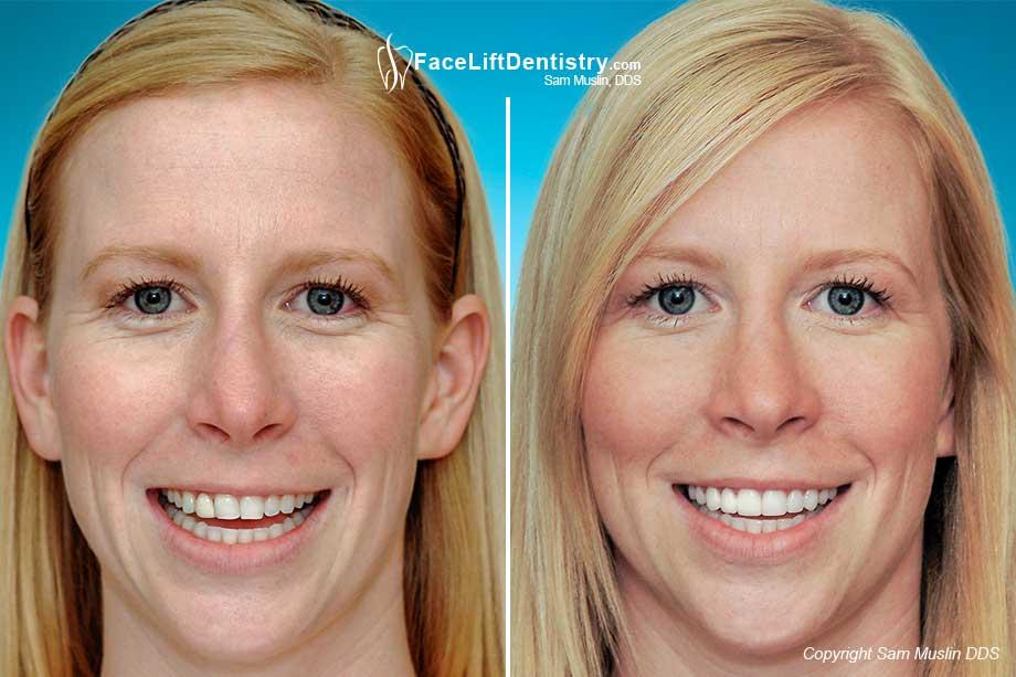 Slanted Teeth And Skew Smile