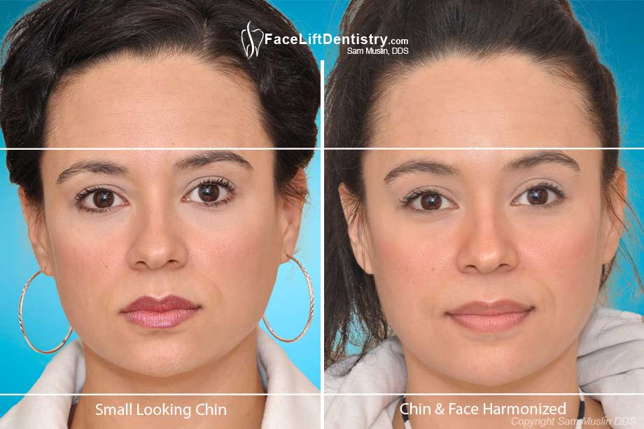 Small Chin and Short Face corrected without invasive surgery using the Face Lift Dentistry<sup>®</sup> method.