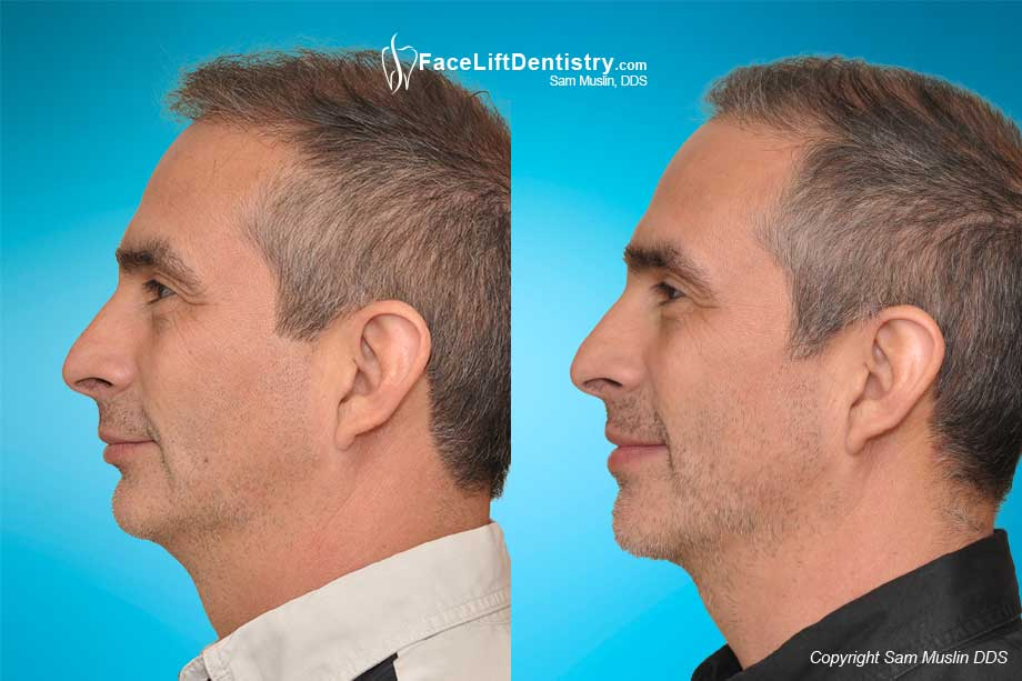 Small Jaw and Overbite Fix without Surgery or Drilling Down Teeth