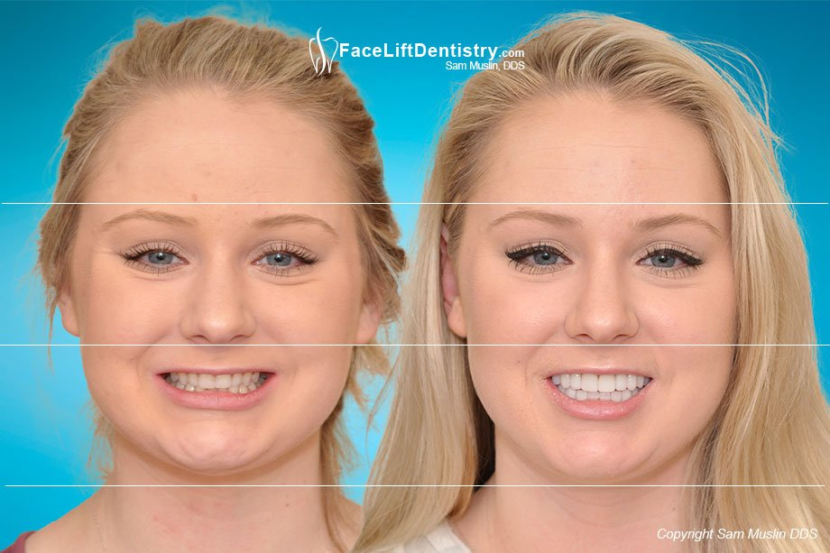 The photo on the left shows small worn teeth and an overbite. In the after photo on the right the entire face shows the outcome of treating her small teeth and bite with Face Lift Dentistry®.