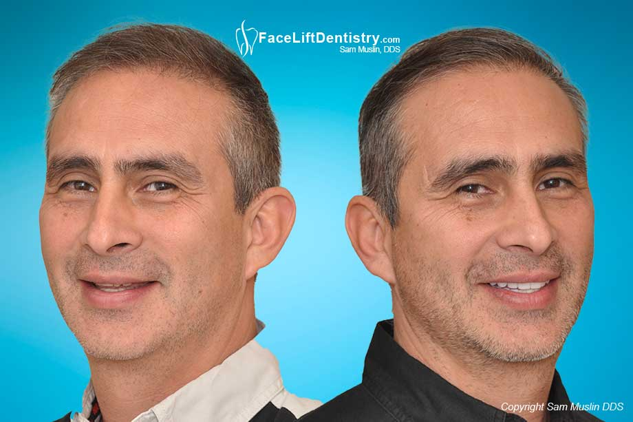 Anti-Aging Face Lift Dentistry