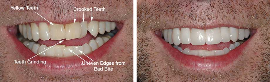 How To Make Teeth Straight Naturally At Home