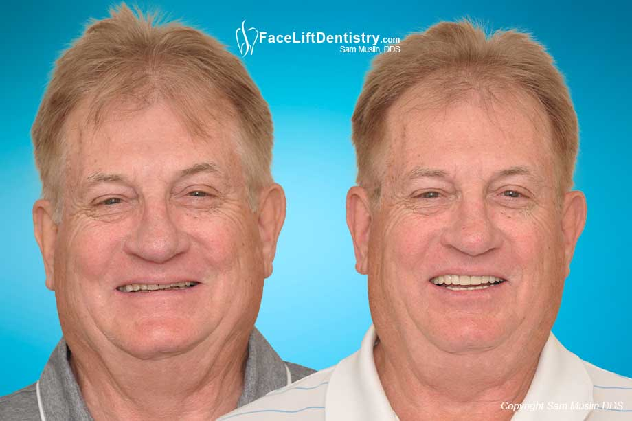 Aging teeth repaired by restoring tooth enamel - before and after