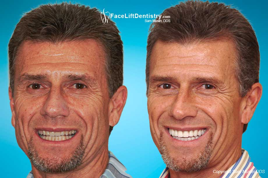 The before photo shows teeth clenching which explains TMJ problems. In the after photo the jaw is balanced with Face Lift Dentistry<sup>®</sup>.