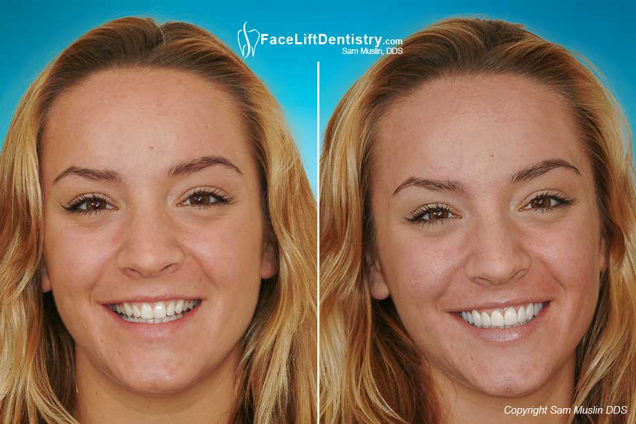 Before and after photo of a young lady who had her smile enhanced with prepless teeth veneers for an even bright white smile.