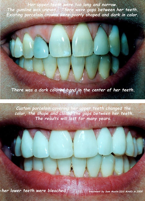 Closeup view of tetracycline stained teeth before and after treatment.