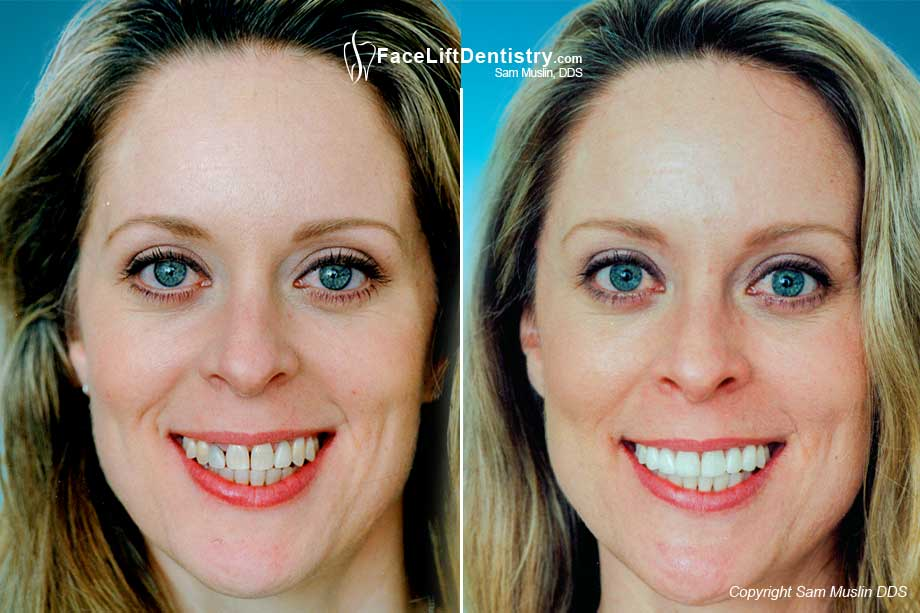 Before and after her Tetracycline Stained Teeth were treated with porcelain veneers.