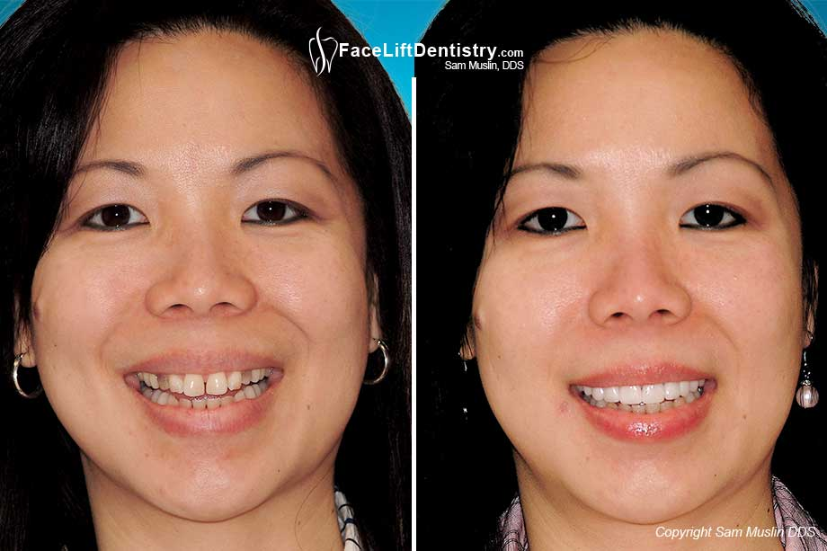 Noninvasive porcelain veneers are used to treat the dark tetracycline stains by completely hiding it and give the patient a beautiful even smile.