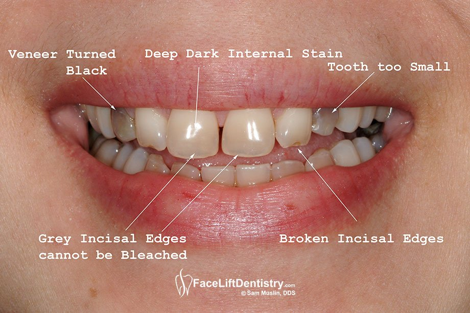 A closeup picture showing the permanent teeth stains caused by Tetracycline.