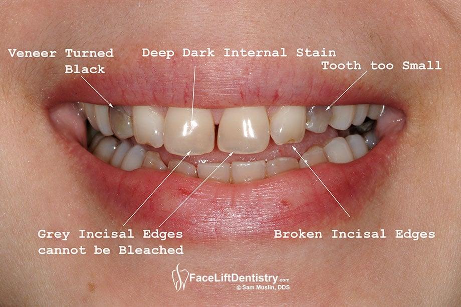 Tetracycline Stained Teeth Wiki