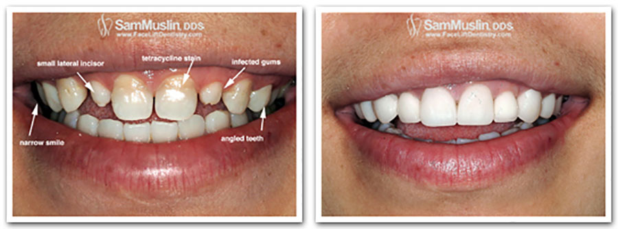 Tetracycline Stained Teeth Whitening