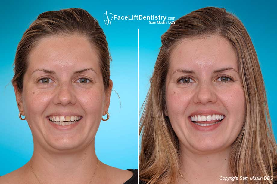 Correcting tooth discoloration - Before and After