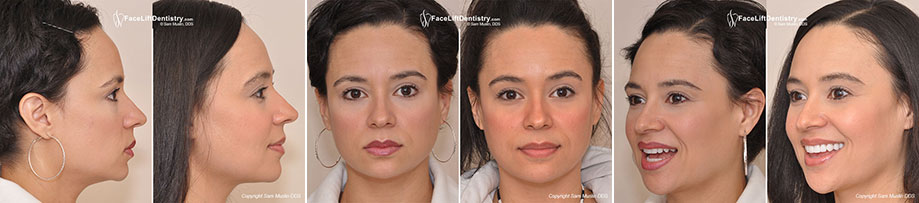 The photo on the left shows worn yellow crooked teeth and an overbite. In the after photo on the right the entire face shows the outcome of treating her bite with Face Lift Dentistry<sup>&reg;</sup>.