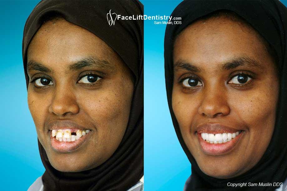 Porcelain Bridge or Dental Implant