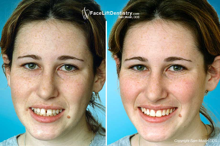 Before and After Picture showing Beafore and after Cosmetic Bonding and Aesthetic Re-Shaping