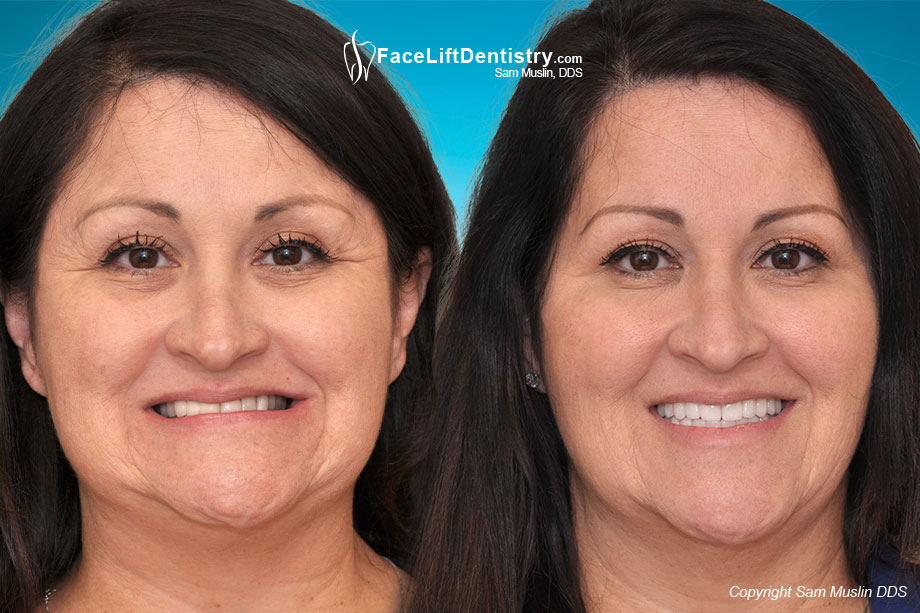 The photo on the left shows the outcome of cosmetic dentistry and porcelain veneers by her local dentist. The photo on the right shows the remarkable difference Face Lift Dentistry® made.