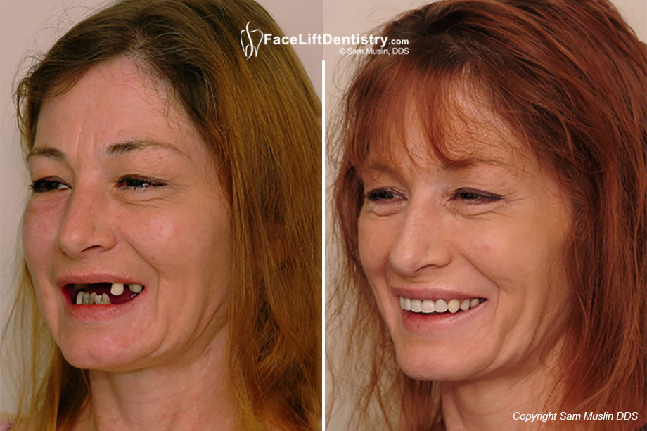 Treatment with the Face Lift Dentistry<sup>&reg;</sup> Method - Before and After Photos.