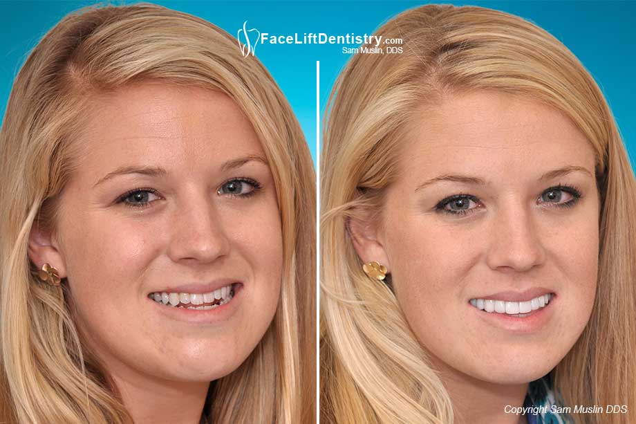 Before and after under bite correction without surgery or braces using the  VENLAY<sup>