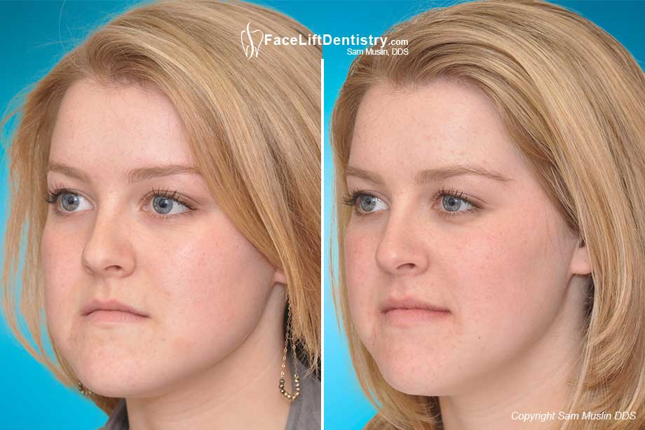 Under bite Correction Alternative to Jaw Surgery