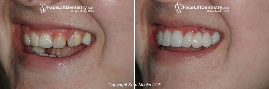 Underbite Correction Treatment in Two or Three Weeks