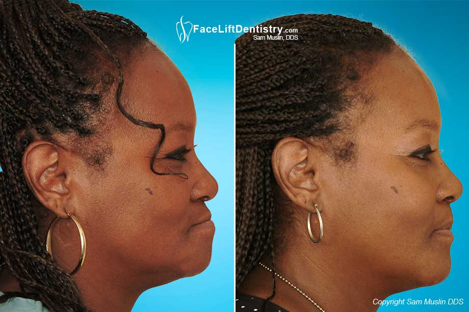 Before and After Face Lift Dentistry with Dentures
