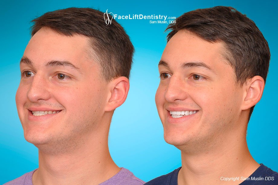 Profile photos showing the much improved underbite jaw