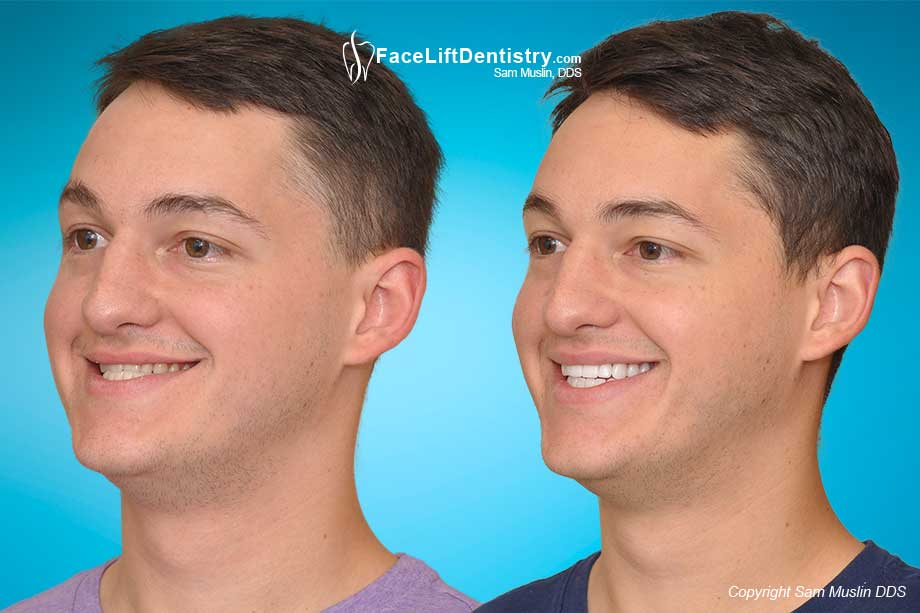 Incorrect Jaw Position Before After