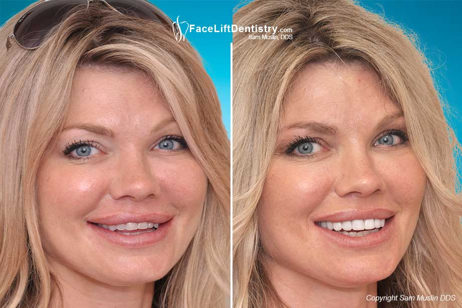 Before and After VENLAY<sup>&reg;</sup> Technology  Bite Correction
